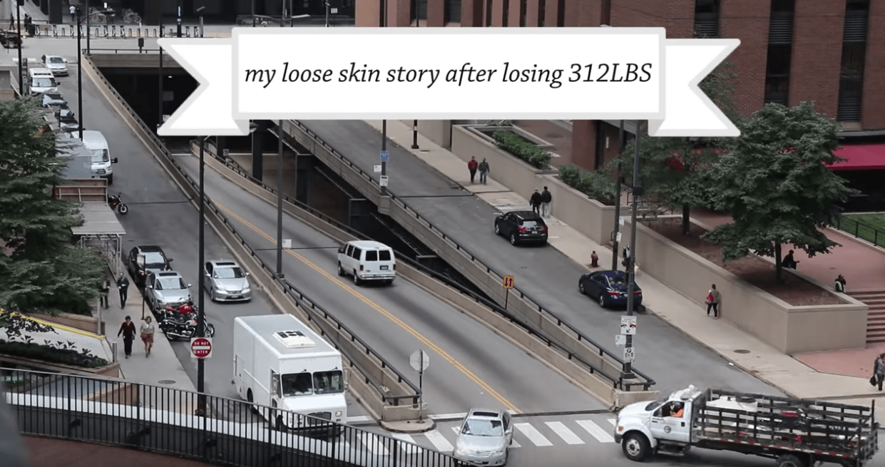 mybiglife-weight-loss-journey-videos-loose-skin-after-312-weight-loss